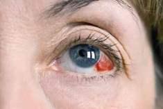 Retina Enfeksiyonları