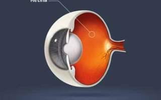 Retina Dekolmanları