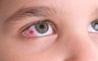Vitreus Hastalıkları