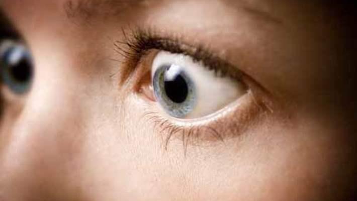 Patlak Göz (Ekzoftalmi)