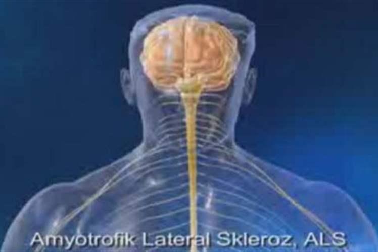 ALS Hastalığına Neden Olan Gen Bulundu