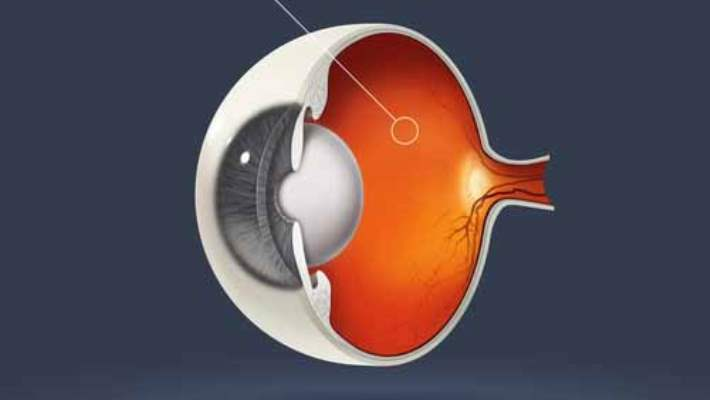 Retina Yırtıkları Ve Dekolmanları