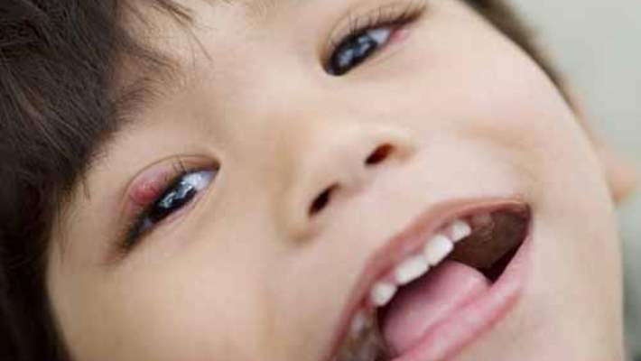 Çocuk ve İleri Yaşlarda Göz Tembelliği Tedavisi