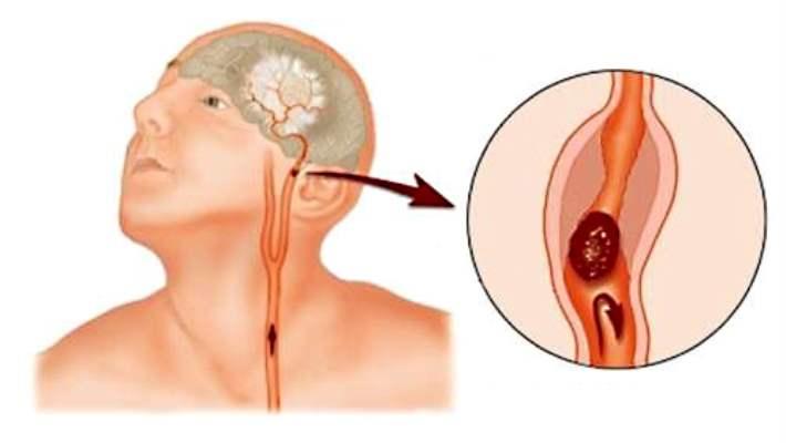 Talamik Sendrom (Dejerine-Roussy Sendromu)