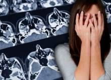 Alerjisi Olanlarda Beyin Tümörü Riski Daha Az