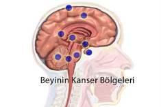 Beyin Kanseri Tedavisinde Yeni Yöntem
