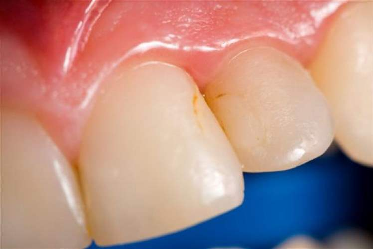 Hipodonti