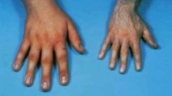 Akromegali (Devlik)