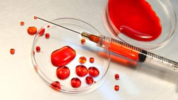 Kan Grubu Felç Riskini Etkileyebiliyor