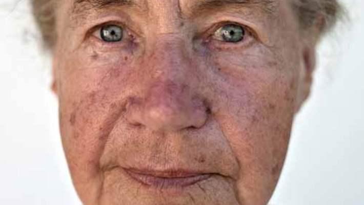 Yaşlı Yetişkinlerde İntihar İşaretleri