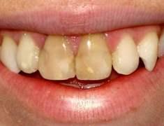 Diş Çürüğü Görülme Oranı Yüzde Doksanların Üzerinde