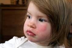 Çocuklar Alerjik Hastalıklardan Muzdarip