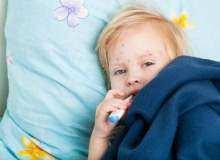 Çocuklarda gribin neden olduğu komplikasyonlar nelerdir?