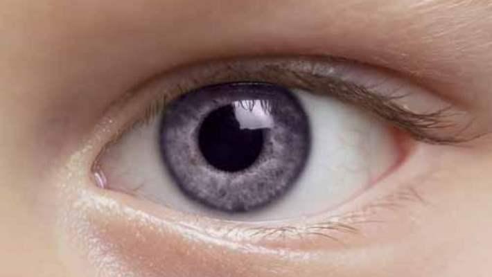Kök Hücreyle Göz Tedavisinde İlk Aşama Geçildi
