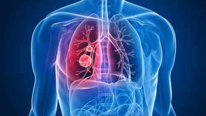 Akciğer Kanseri Hastaları İçin Kişiye Özel İlaç