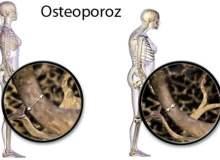 Osteoporoza Çip Sayesinde Uzaktan Tedavi
