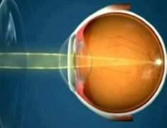 Burundan Göz Ameliyatı Yapılacak