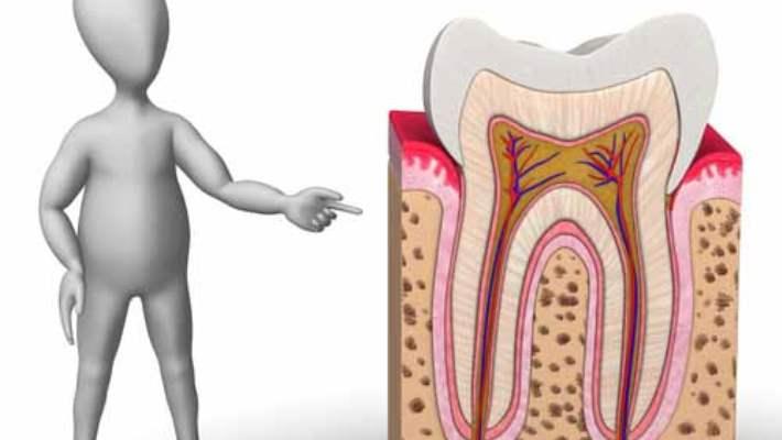 Kırılan Dişin Tedavisi Nedir?