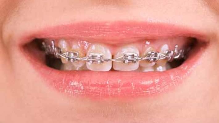 Çocuklara Diş Teli Takıldıktan Sonra Nasıl Bakım Yapılır?
