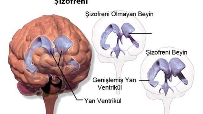 Şizofreni Tedavisinde En Etkili Yöntem İlaç