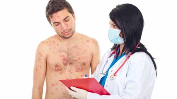 Alerji İlacı Doktor Kontrolünde Mi Kullanılmalı?