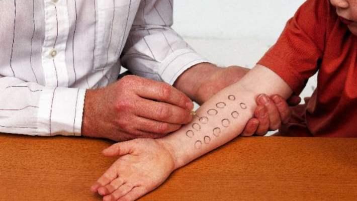 Alerji Tedavileri Hangi Aşamalardan Oluşur?
