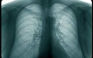 Akciğer amfizemi tedavi edilmezse ne olur?