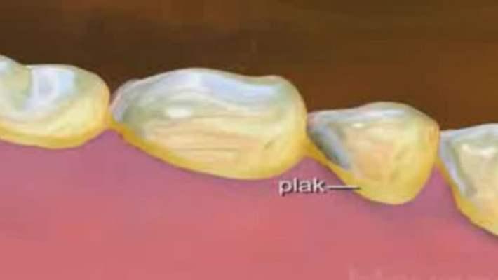 Diş Taşları Temizlenirken Dişler Zarar Görür Mü?