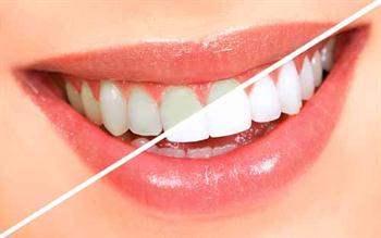 Dişlerin yapısı gülüş estetiğini etkiler mi?