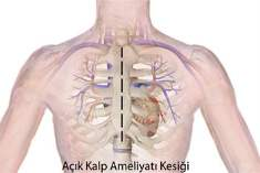 Deri Hücresinden Kalp Kası Oluşturuldu