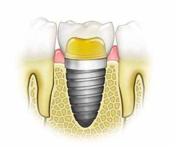 Diş implantı nasıl bir uygulamadır?