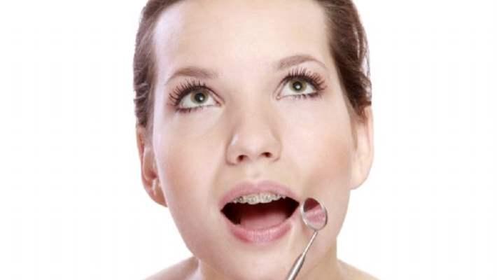 Diş Dolgusundan Sonra Nelere Dikkat Edilmeli?