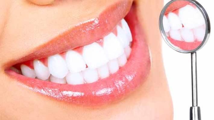 Diş Lekeleri Temizlenirken Dişler Zarar Görür Mü?