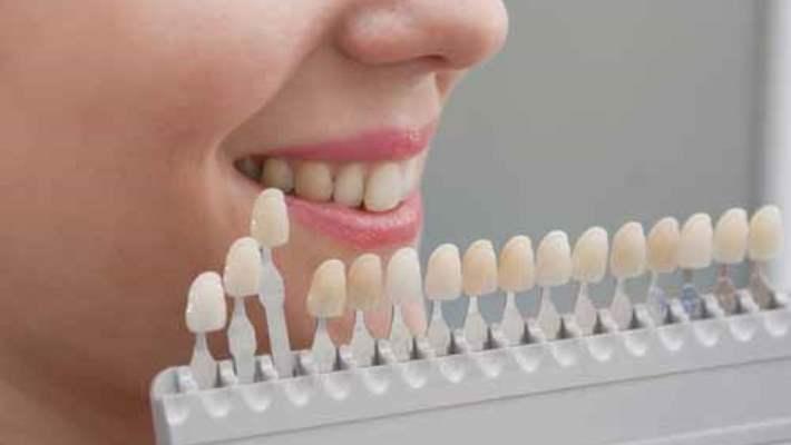 Lazer İle Diş Beyazlatma Yöntemi Nedir?
