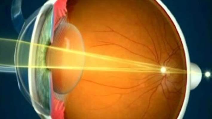 Lazer Tedavisiyle Gözlükten Kurtulma