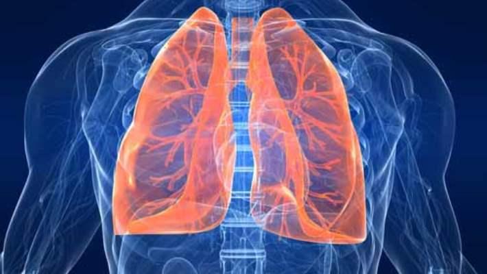 Akciğer Amfizeminin Teşhisi Nasıldır?