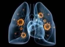 Akciğer Embolisi Riski Kimlerde Görülür?
