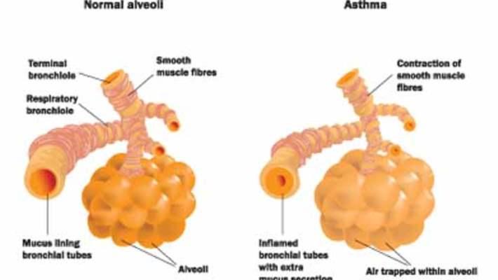 Akciğer Embolisinde Aspirin Kullanılmaz