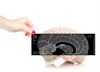 Beyin Kanaması Riskini Azaltmanın Yolları