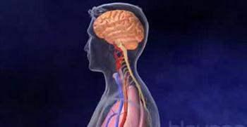 Beyin Kanaması Sırasında Yaşananlar