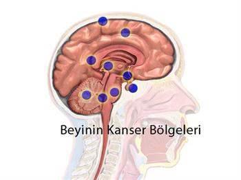 Beyin Kanaması Türleri