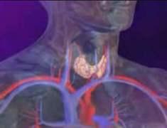 Aşırı Aktif Tiroid Erken Felç Riskini Yükseltebilir