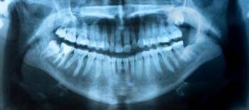 Yirmi yaş dişinin çekilmesi gereken durumlar hangileridir?