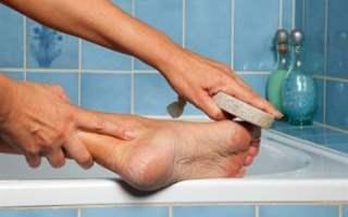 Ayak nasırlarının tedavisi nasıl yapılır?