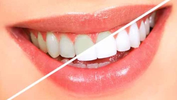 Dişlerin Renklenmesine Yol Açan Faktörler Nelerdir?