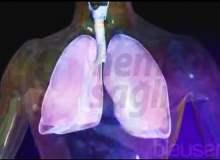 Akciğer zarı kanseri