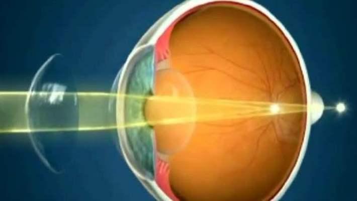Astigmatı Olanlarda Lens Kullanımı