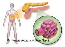 Pankreas Kanseri Ameliyatı Sonrası
