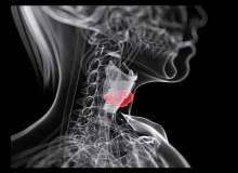 Gırtlak Kanserinin Radyoterapi İle Tedavisi
