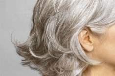 Saçınız Neden Beyazlar